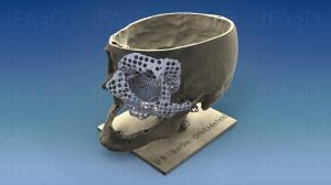 skull with implant